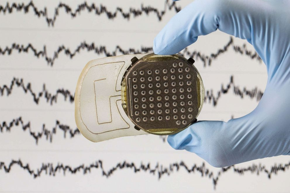PHOTO: Electrodes on implants read brain activity and beam the instructions to a nearby computer.