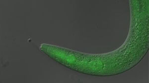 Photo: Scientists paralyze and then cure worms: Canadian researchers use light to turn potential drugs on, and then off