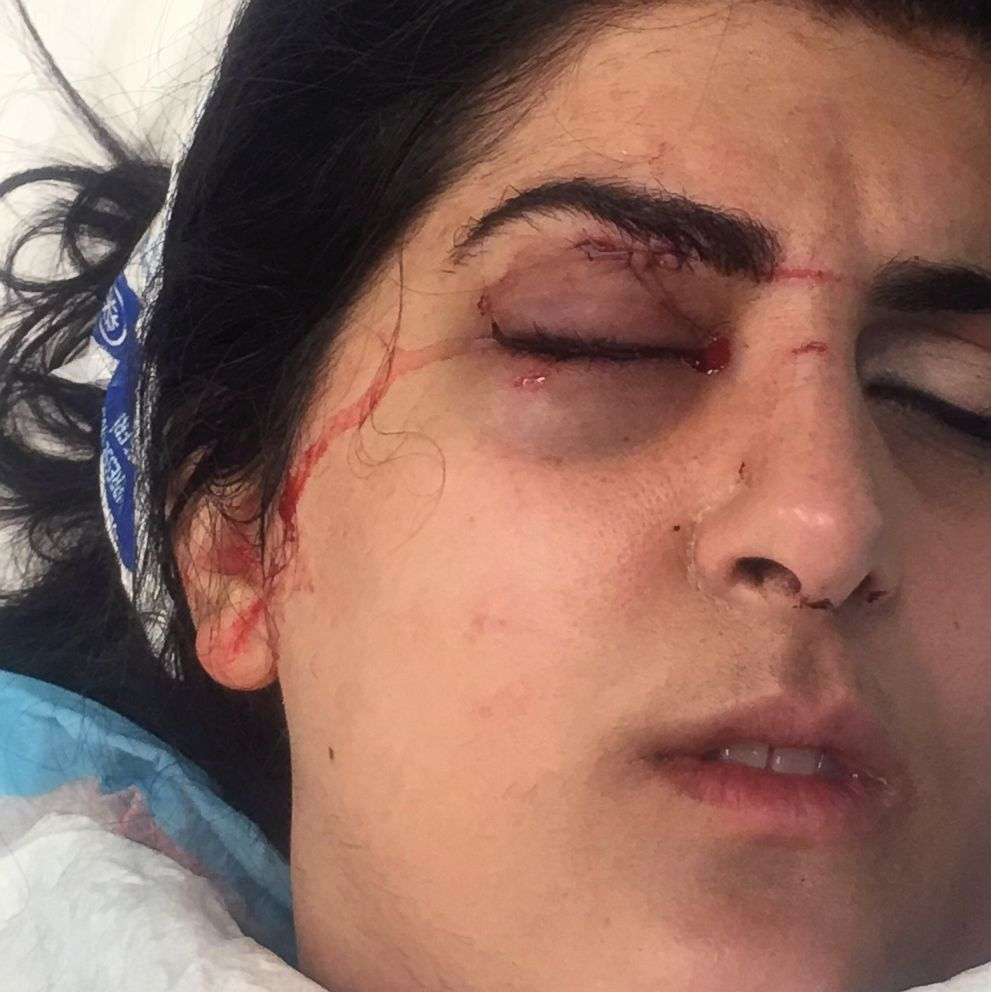 PHOTO: A drone struck Monika Nourmand, injuring her in the eye, during a light show at Caesars Palace Hotel and Casino in Las Vegas. A lawsuit against Caesars Palace, the Great Lakes Drone Company and the drone operator has been filed in the incident.