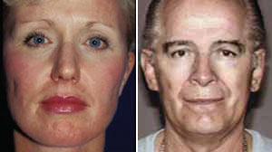 Whitey Bulger Search Moves To Plastic Surgery Newsletter