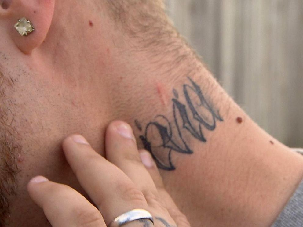 PHOTO: Michael Babcock points to a scar on his neck where he said Daron Wint stabbed him in June 2007.