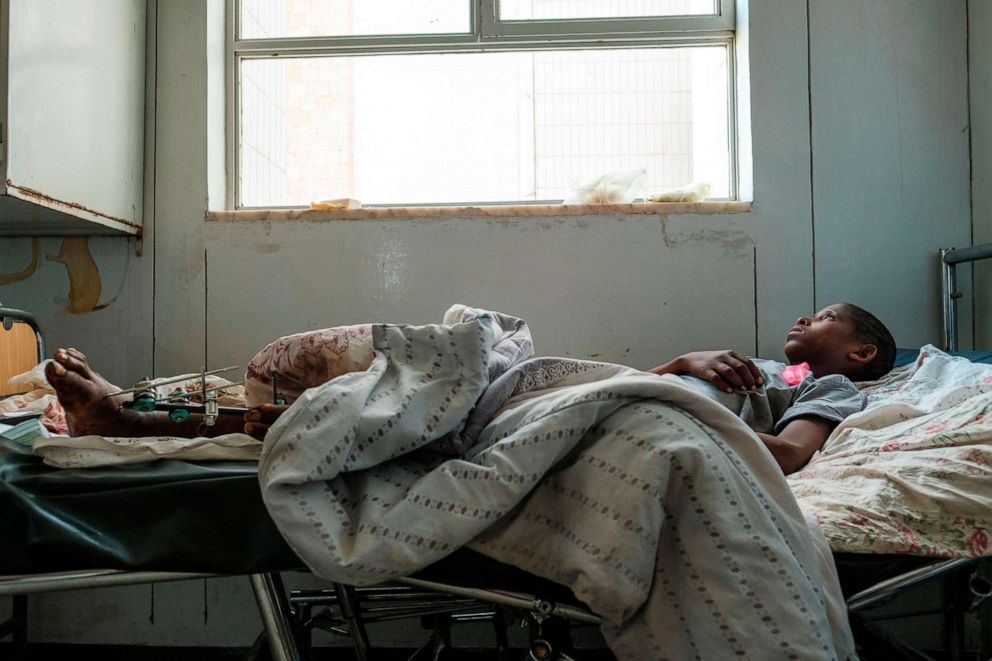 PHOTO: Desalegn Gebreselassie, 15, lies in his bed at Ayder Referral Hospital in in the Tigray capital Mekele, Feb. 25, 2021, after being injured during fighting between the Tigray People's Liberation Front.