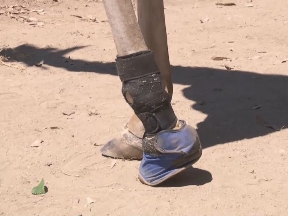 PHOTO: The Sacramento Zoo has outfitted Goody the giraffe with a new shoe to help relieve her arthritis symptoms.