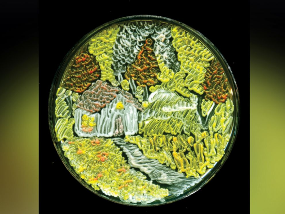 PHOTO: Harvest Season by microbiologist Maria Eugenia Inda from Argentina won third place in the American Society of Microbiologys 2015 Agar Art Contest.