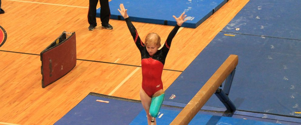 PHOTO: Kate Foster lost her leg to a leukemia-related infection when she was 12, but she didnt allow the loss to keep her from being a gymnast.