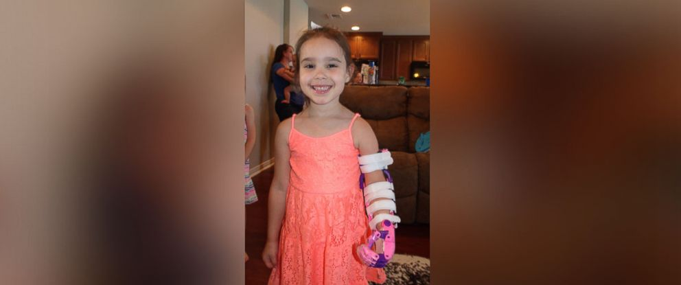 PHOTO: Katelyn Vincik, 5, received a custom 3-D printed prosthetic arm from her local library in Texas.