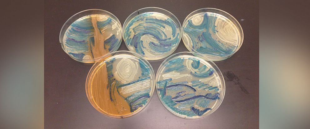 """PHOTO: Microbiologist Melanie Sullivan of Missouri recreated Vincent van Goghs """"The Starry Night"""" for the American Society of Microbiologys 2015 Agar Art Contest."""