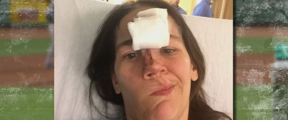PHOTO: Stephanie Wapenski required more than 30 stitches after being struck by a baseball during a New York Yankees-Boston Red Sox game at Fenway Park in Boston, July 10, 2015.