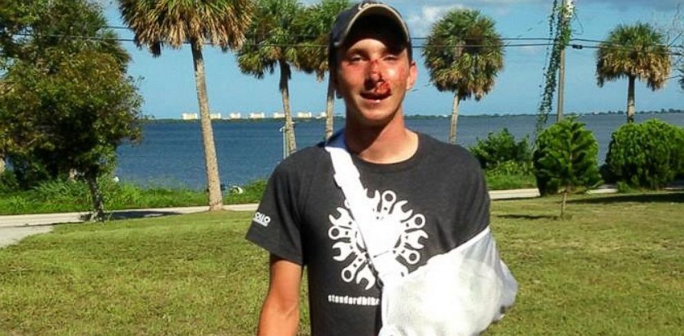 PHOTO: Jacob Landis pictured after the accident.