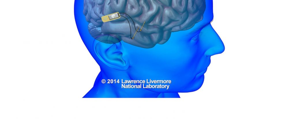 PHOTO: Lawrence Livermore National Laboratory (LLNL) will develop an implantable neural device with the ability to record and stimulate neurons within the brain to help restore memory.