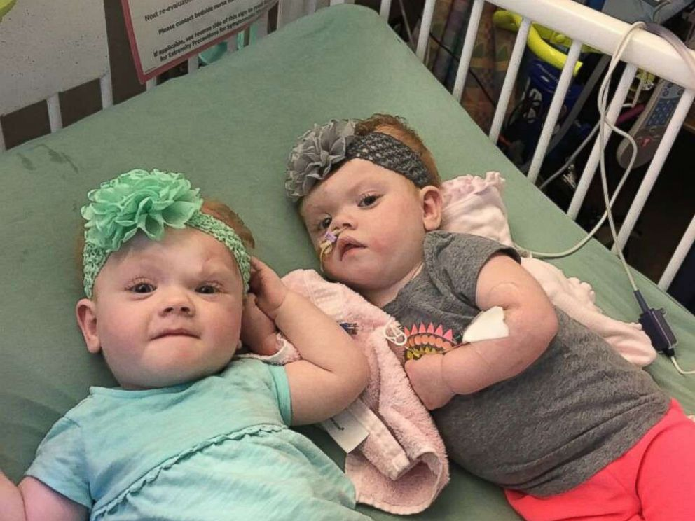 PHOTO: Fifteen-month-olds Erin and Abby Delaney, who were born conjoined by the head.