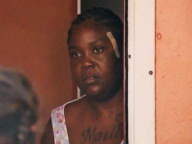 Shooting victim alleges hospital missed bullet in her head, sent her home