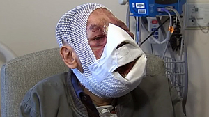 PHOTO Jose Mestre has spent three months in Chicago, undergoing four facial surgeries at St. Joseph Hospital.