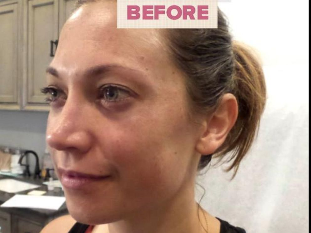 PHOTO: ABC News chief meteorologis Ginger Zee opens up about her melasma journey.