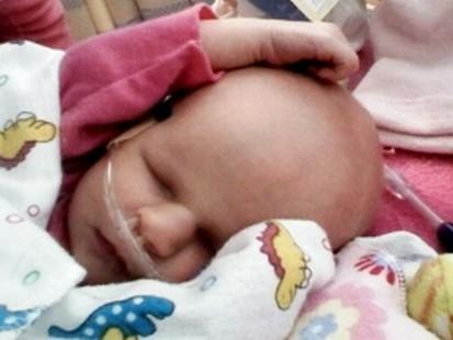 VIDEO: Baby Faiths rare condition