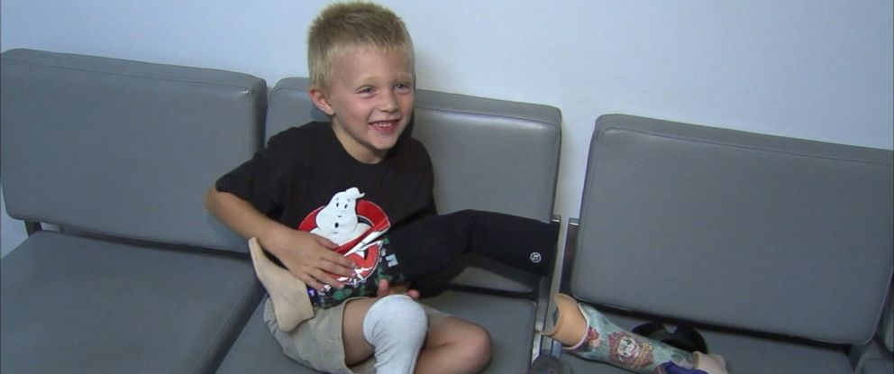 "PHOTO: Staff at Essential Orthotics and Prosthetics in Palmdale, California, donated a ""Ghostbusters""-themed prosthetic limb to 4-year-old Liam Brenes, July 28, 2016."