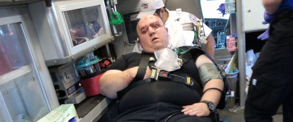 This March 2015 photo provided by the Smith County Sheriffs Office shows sheriffs deputy Wesley Dean after an altercation in Texas. According to police Dabrett Black, the suspect in the fatal shooting of a Texas state trooper, had beaten Dean.