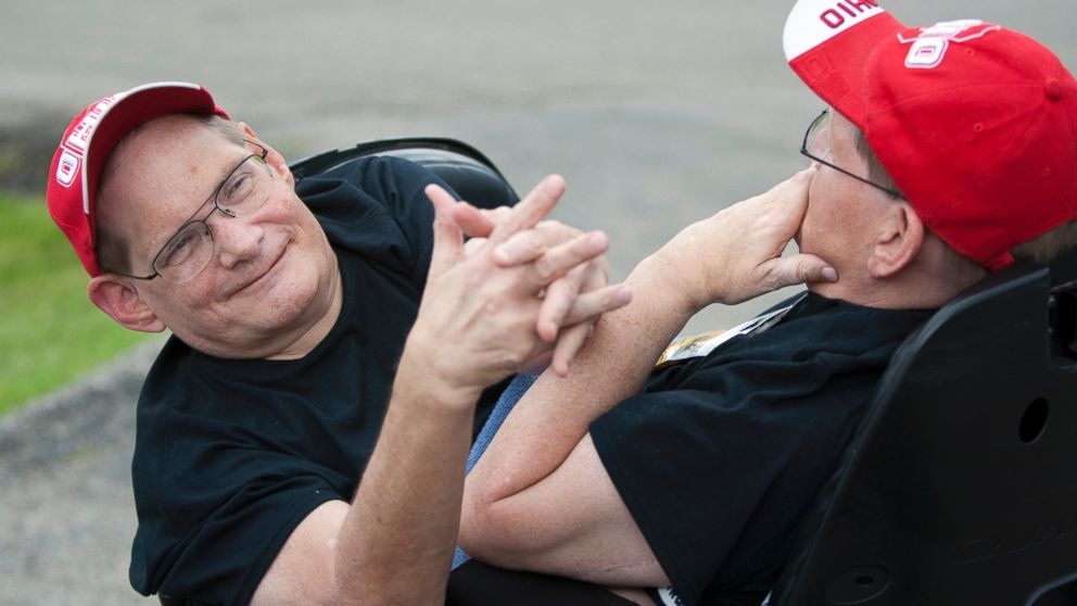Image result for Oldest Living Conjoined Twins In The World