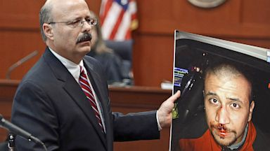 PHOTO: Assistant state attorney holding photo of George Zimmerman