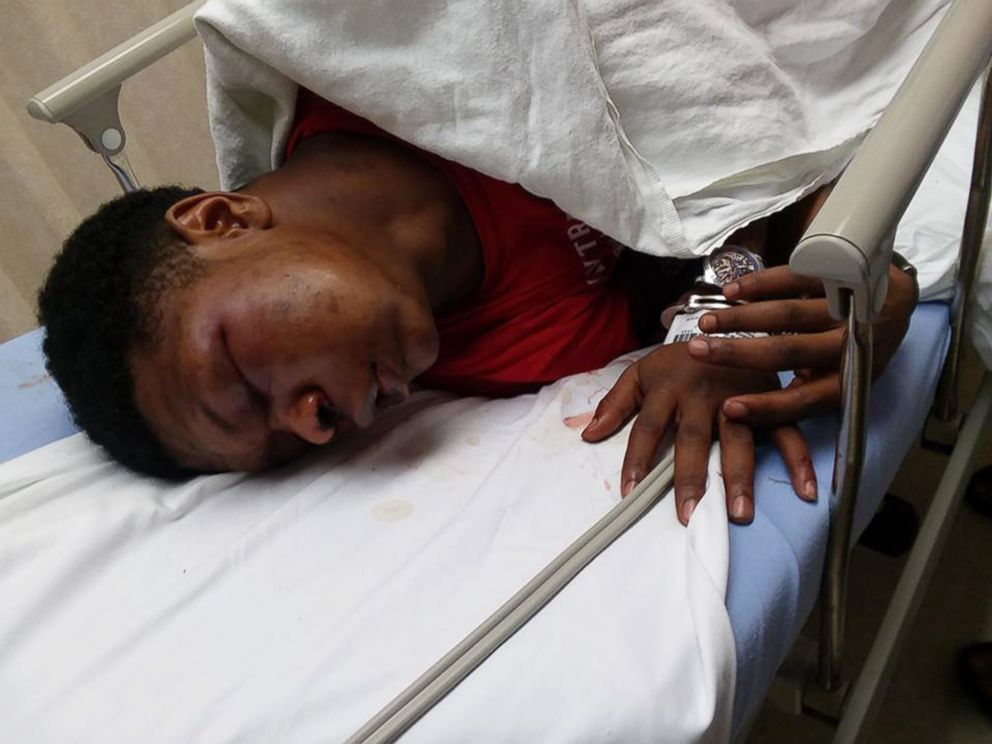 PHOTO: Ulysses Wilkerson, 17-year-old, lies in a hospital bed following his arrest by police officers in Troy, Ala. His mother Angela Williams posted the photos claiming her son was a victim of police brutality.