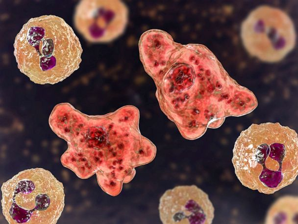After brain-eating amoeba found in water supply, advisory lifted in all but 1 area