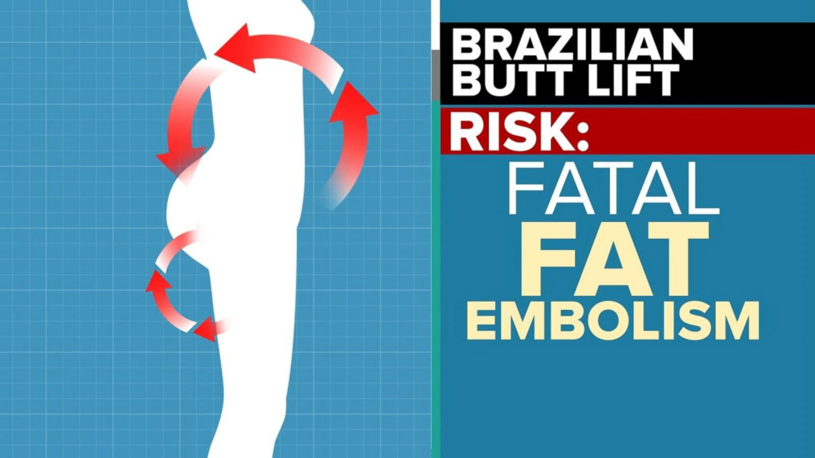 Plastic surgeons' group issues new warning over Brazilian butt lift