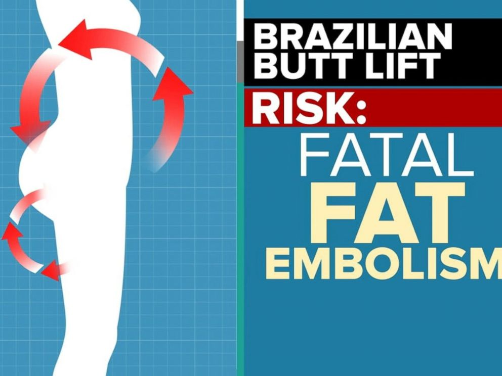 PHOTO: As many as one in 3,000 people who undergo the Brazilian butt lift die, according to a new warning.
