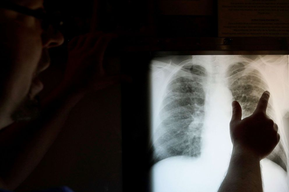 Radiology technician Mark Davis looks at the chest x-ray of retired coal miner James Marcum, who has complicated black lung disease, at Stone Mountain Health Services in St. Charles, Va., May 18, 2018. According to Davis, there are no digital x-ray machines in the county, except at a veterinary clinic, so the x-ray film has to be sent to a radiologist to be read, adding weeks to the process of diagnosis.