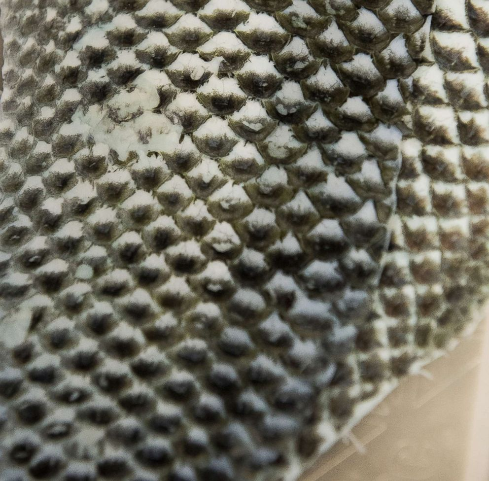 PHOTO: Tilapia skin is used in an experimental treatment on burn wounds because it provides protection, lasts for days, and contains vast amounts of collagen to promote fast healing.