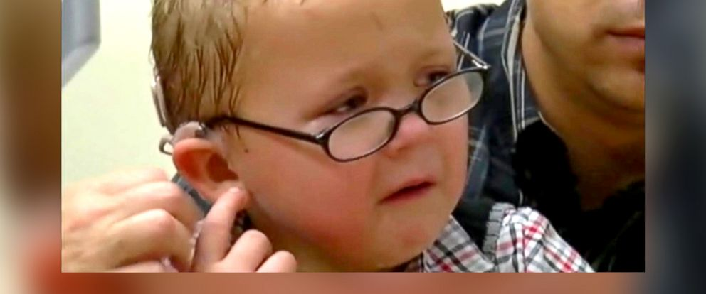 PHOTO: A 5-year-old boy was able to hear for the first time after getting a cochlear implant.