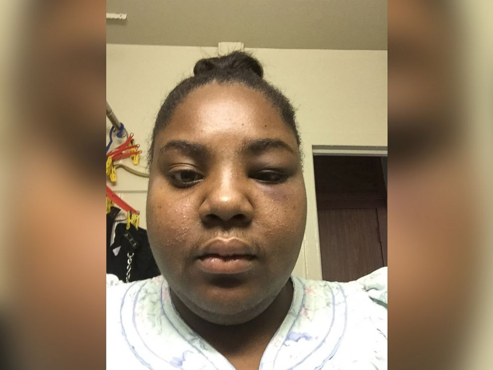 NYC Woman's Dog Survives Being Shot in the Mouth by Ex-Boyfriend Who