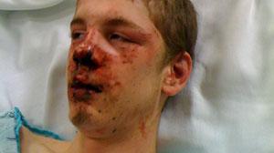 W. Seattle teen beaten bloody in possible hate crime