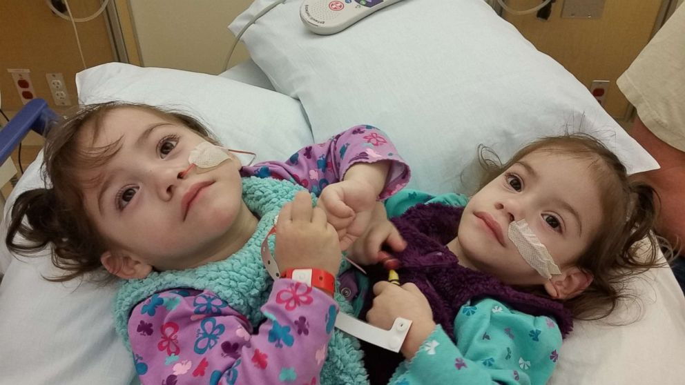 What life is like now for formerly conjoined twin sisters after separation  surgery - ABC News