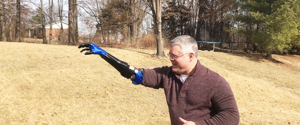 PHOTO: Jason Frei takes his baseball-throwing prosthetic arm outside. His son, Robbie Frei, created it for him as part of his senior thesis.