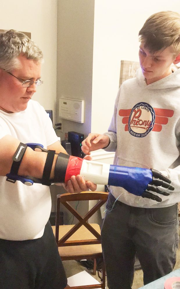 PHOTO: Jason Frei tries on a prosthetic arm made for him by son Robbie Frei, a senior.