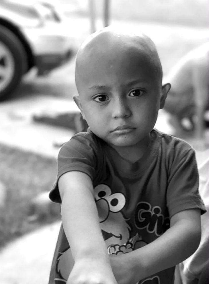 PHOTO: Jayden Berrones, 5 years old, battling Leukemia, 2017