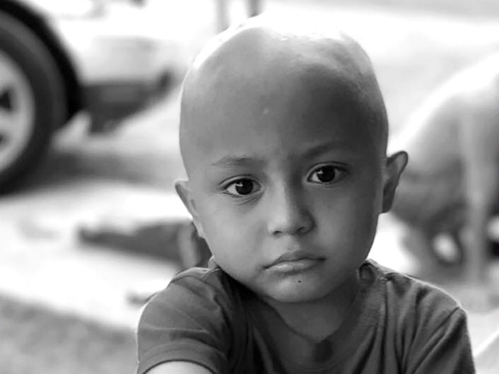 PHOTO: Jayden Berrones, 5 years old, battling Leukemia, 2017