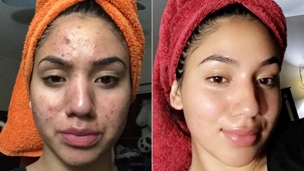 Teen Shares How She Cleared Her Severe Acne Using Cheap Products Abc News