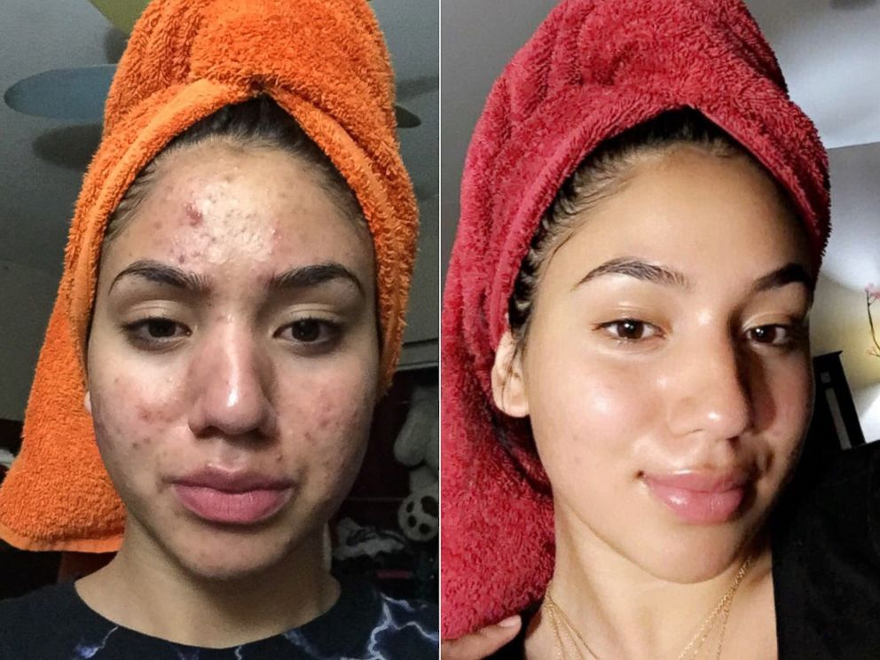 PHOTO: Karina Banuelos, 17, shared these before-and-after photos of how she cleared up her acne using a skincare routine featuring four cheap products.