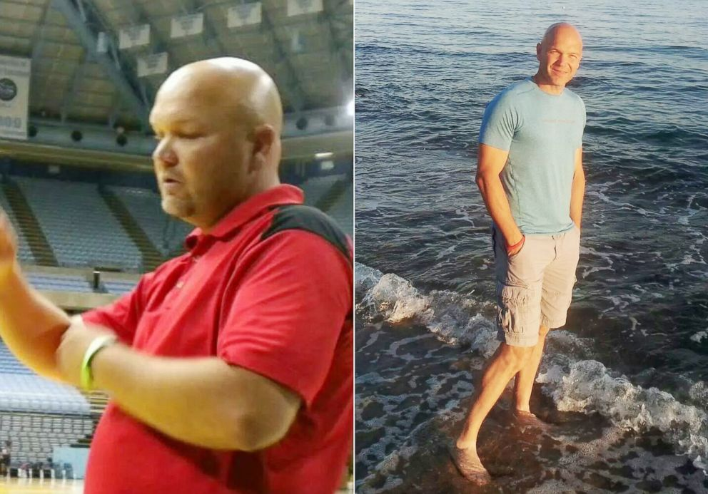 PHOTO: Andy Bell, 45, is photographed before and after his 100-pound weight loss.