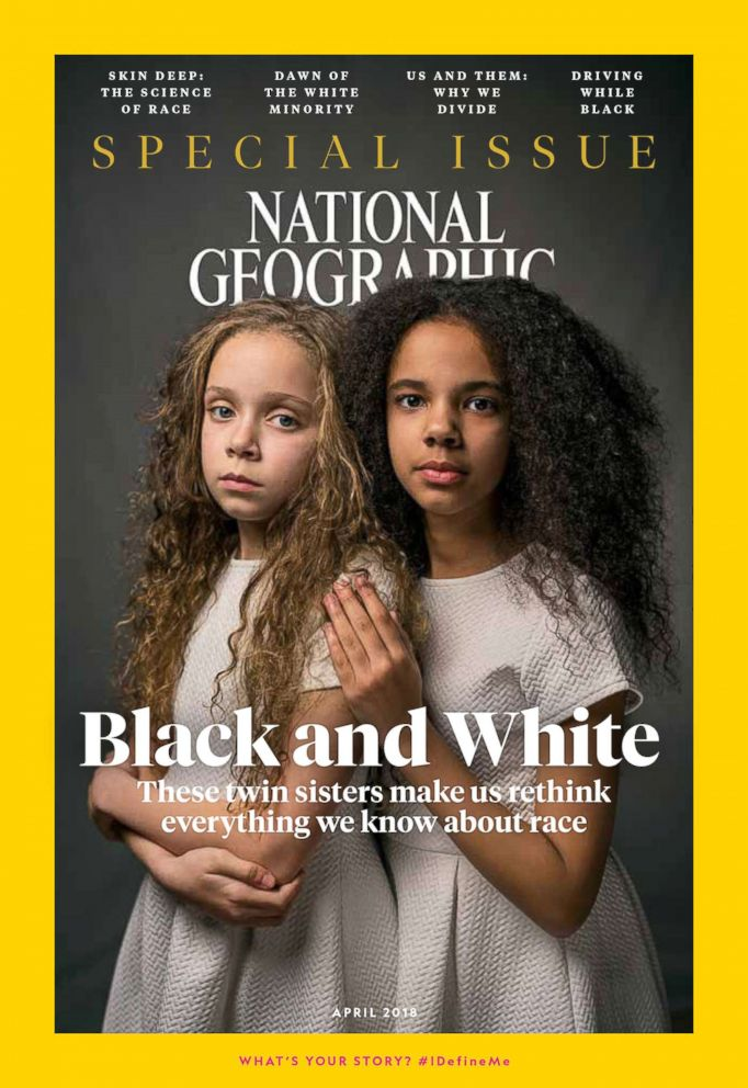 PHOTO: Marcia and Millie Briggs, 11-year-old biracial twins, are featured on the cover of the April issue of National Geographic magazine, a single topic issue on the subject of race.