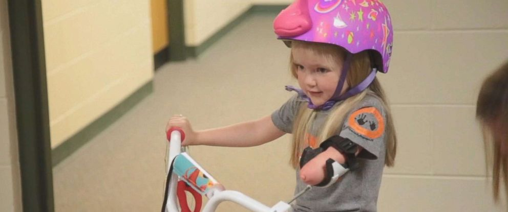 PHOTO: Drew Gill, 4, was born without part of her arm.