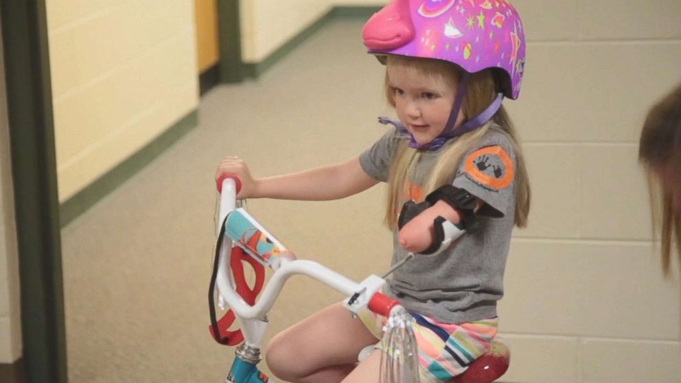 Drew Gill, 4, was born without part of her arm.