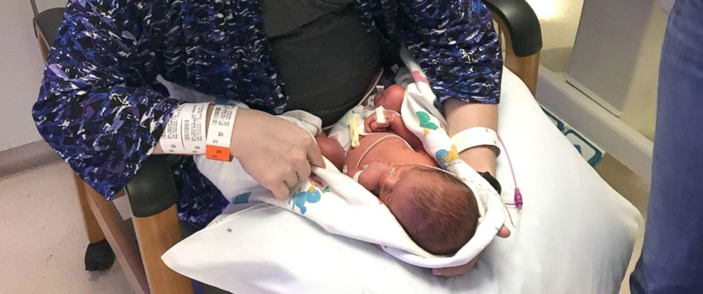 PHOTO: Nicole Choge gave birth to a rare set of identical triplets at Truman Medical Center in Kansas City.
