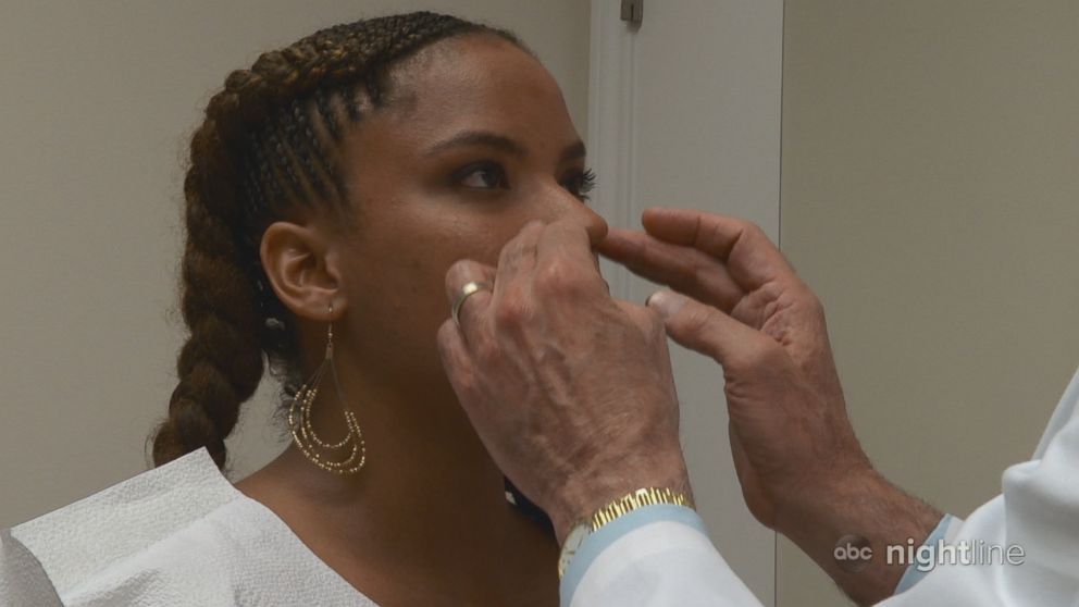 PHOTO: Renata Williams, 33, plans her five procedures with plastic surgeon Dr. Franklin Rose.