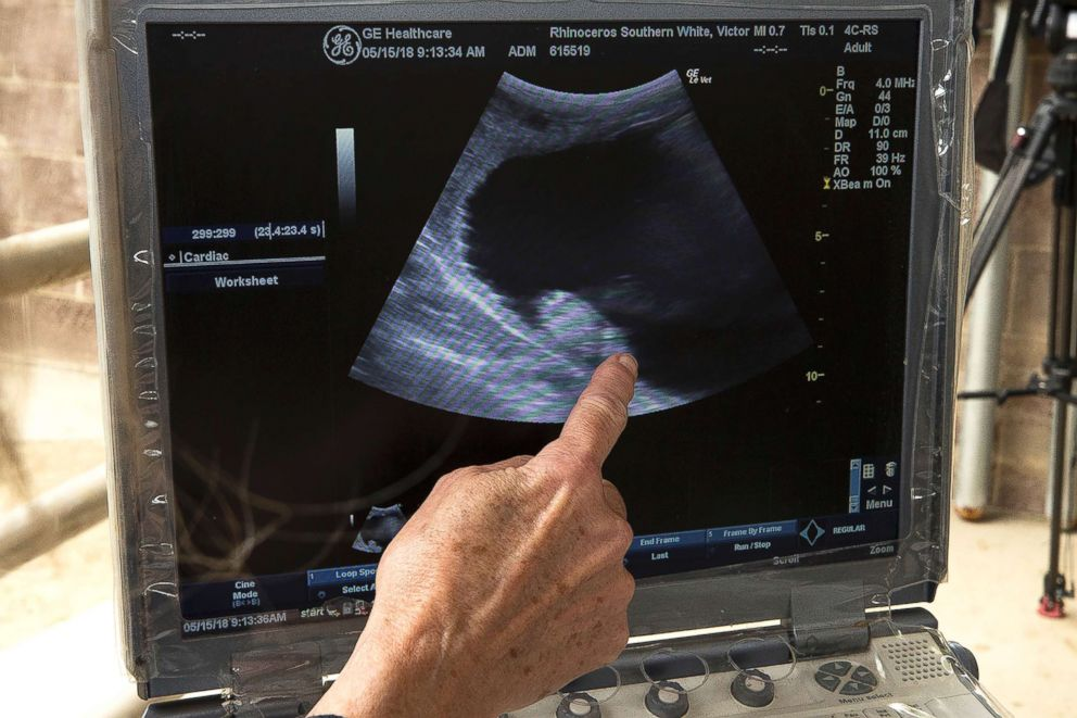 PHOTO: A researcher points to the newest ultrasound of Victoria, May 15, 2018.