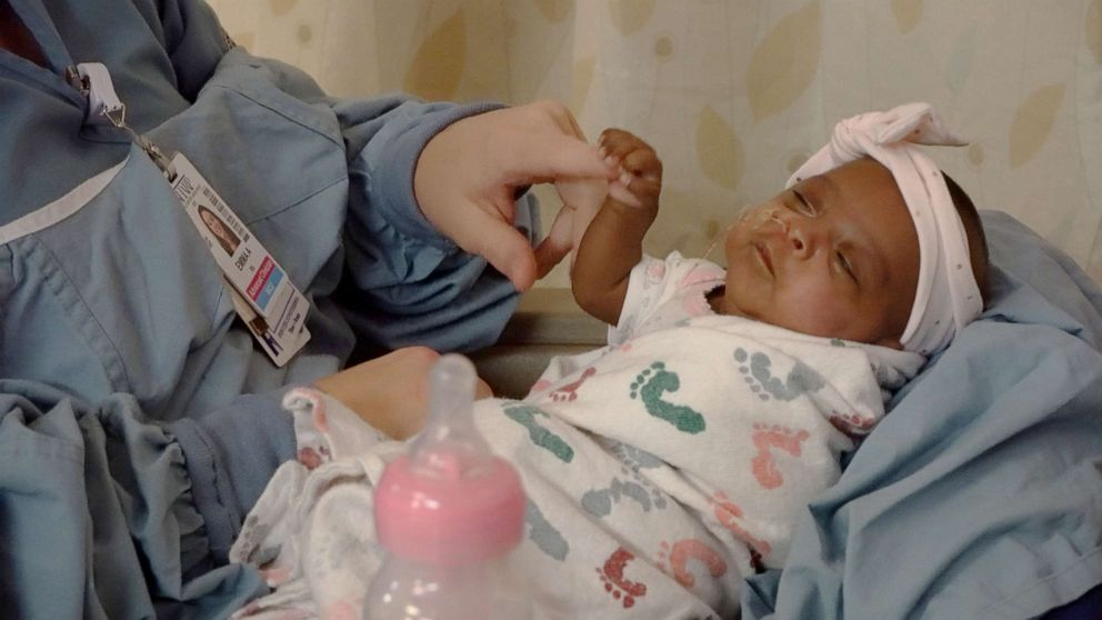 PHOTO: Saybie, the worlds smallest surviving baby who was born at .5 pounds in San Diego, California, has been discharged from the hospital five months after her birth.