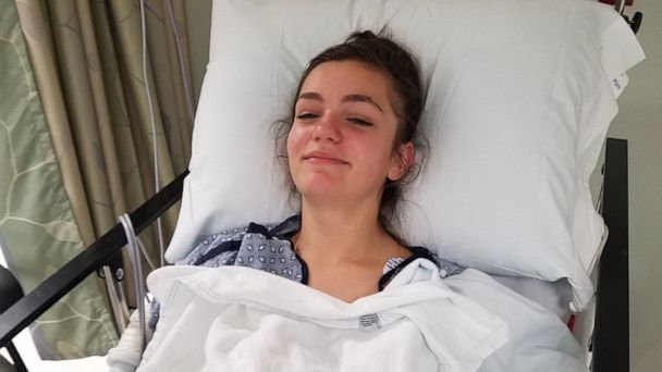 'It was just total fear': California teen describes being attacked by sea lion
