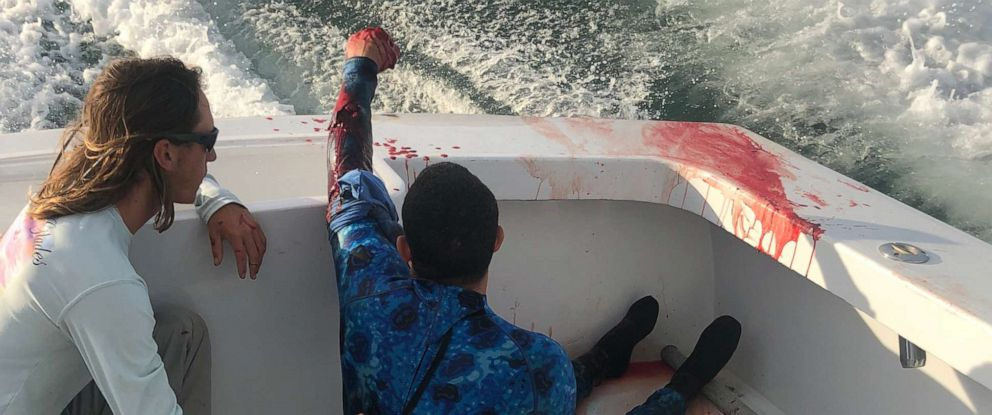 PHOTO: A group of nurses was on a fishing boat off South Florida when a spearfisherman was attacked by a shark, Aug. 3, 2019.