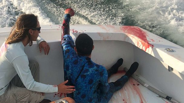 Diver attacked by shark rescued by fishing boat full of nurses in Florida